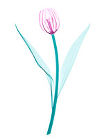 X-ray of a Tulip 03