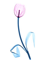 X-ray of a Tulip 01